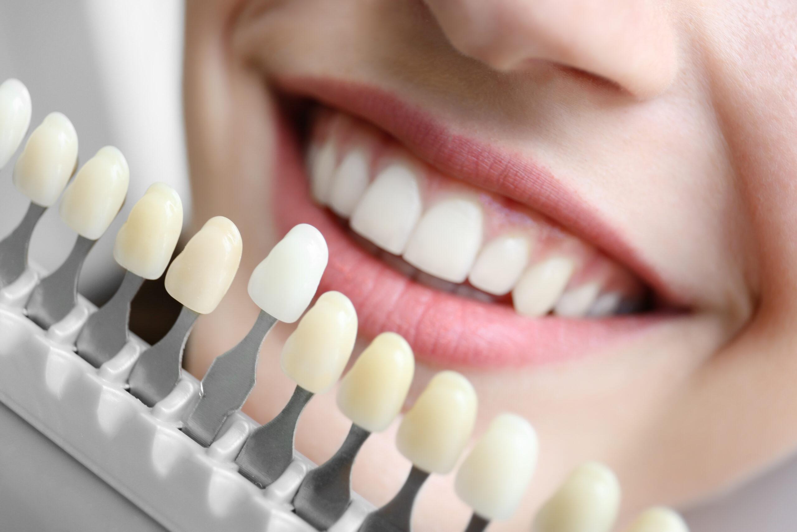 Estetica dental Clinica Dental Llona